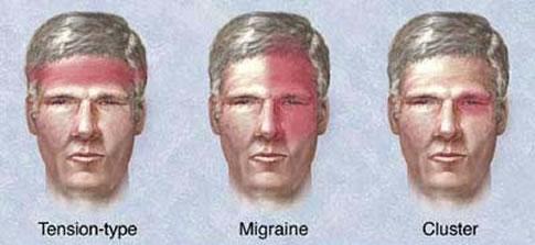 hoofdpijn rechterkant van het hoofd